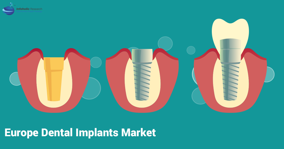 europe-dental-implant-market